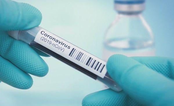 hoy-se-notificaron-415-nuevos-casos-de-coronavirus-en-salta